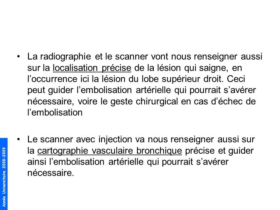 La radiographie et le scanner vont nous renseigner aussi sur la localisation précise de la lésion qui saigne, en l'occurrence ici la lésion du lobe supérieur droit. Ceci peut guider l'embolisation artérielle qui pourrait s'avérer nécessaire, voire le geste chirurgical en cas d'échec de l'embolisation