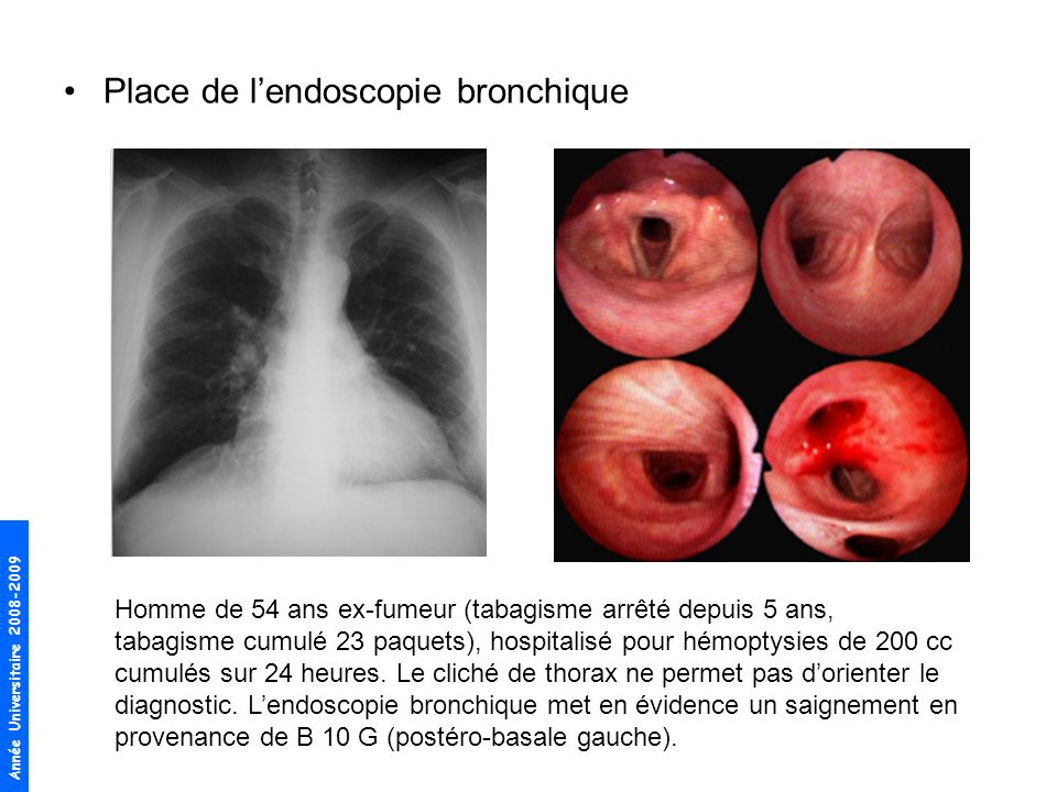 Place de l'endoscopie bronchique