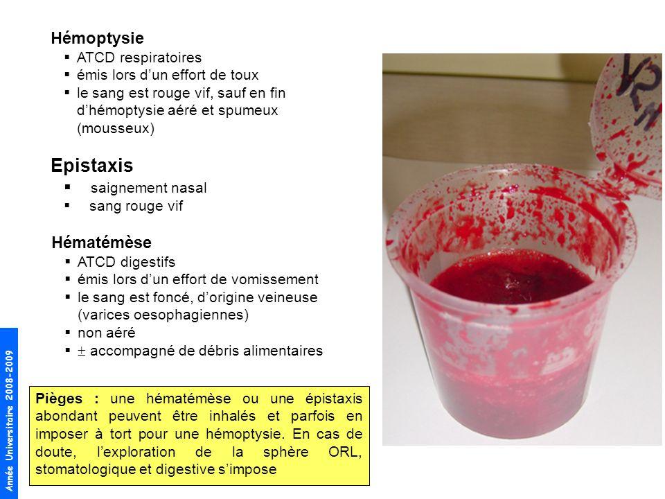 Epistaxis Hémoptysie saignement nasal Hématémèse ATCD respiratoires