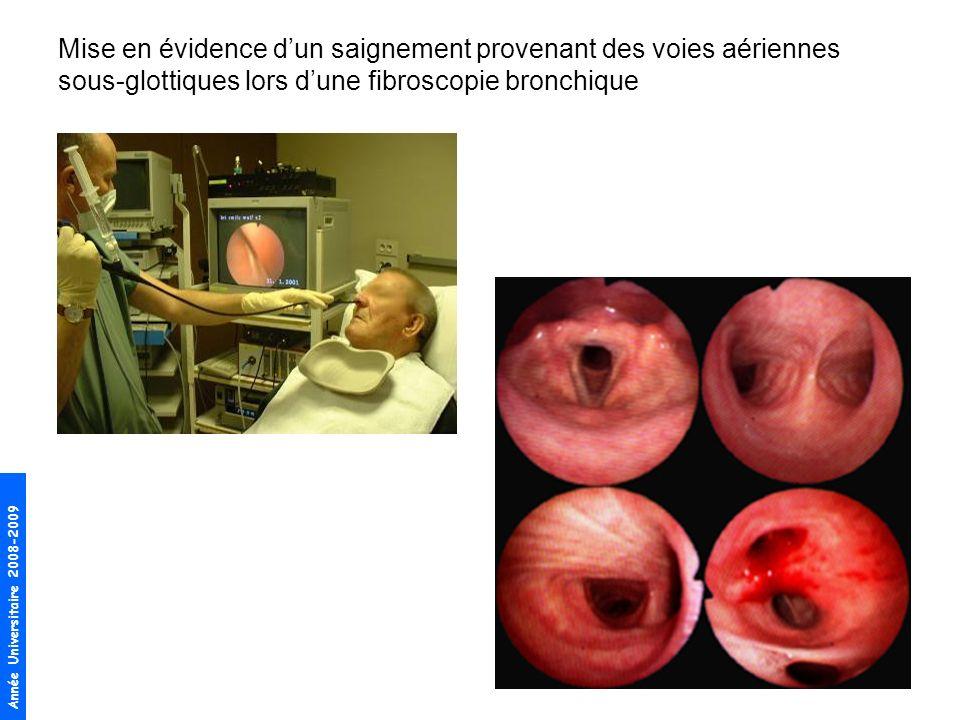 Mise en évidence d'un saignement provenant des voies aériennes sous-glottiques lors d'une fibroscopie bronchique