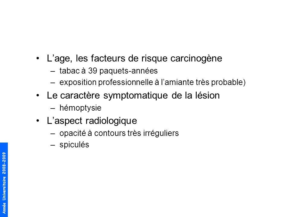 L'age, les facteurs de risque carcinogène