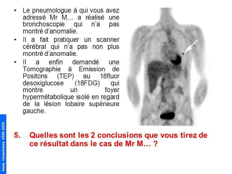 Le pneumologue à qui vous avez adressé Mr M… a réalisé une bronchoscopie qui n'a pas montré d'anomalie.