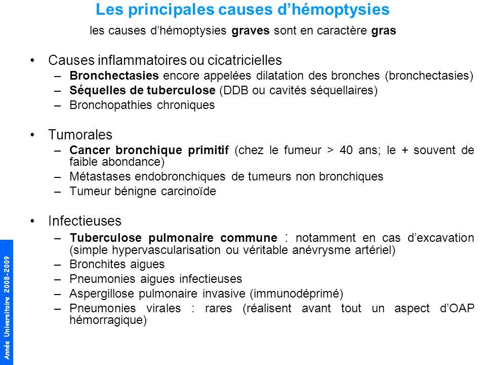 Les principales causes d'hémoptysies les causes d'hémoptysies graves sont en caractère gras
