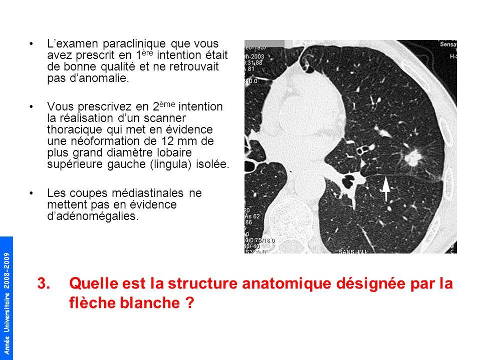Quelle est la structure anatomique désignée par la flèche blanche