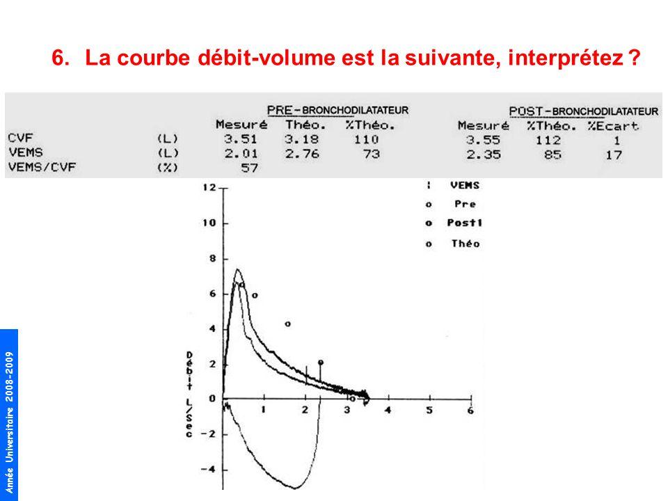 La courbe débit-volume est la suivante, interprétez