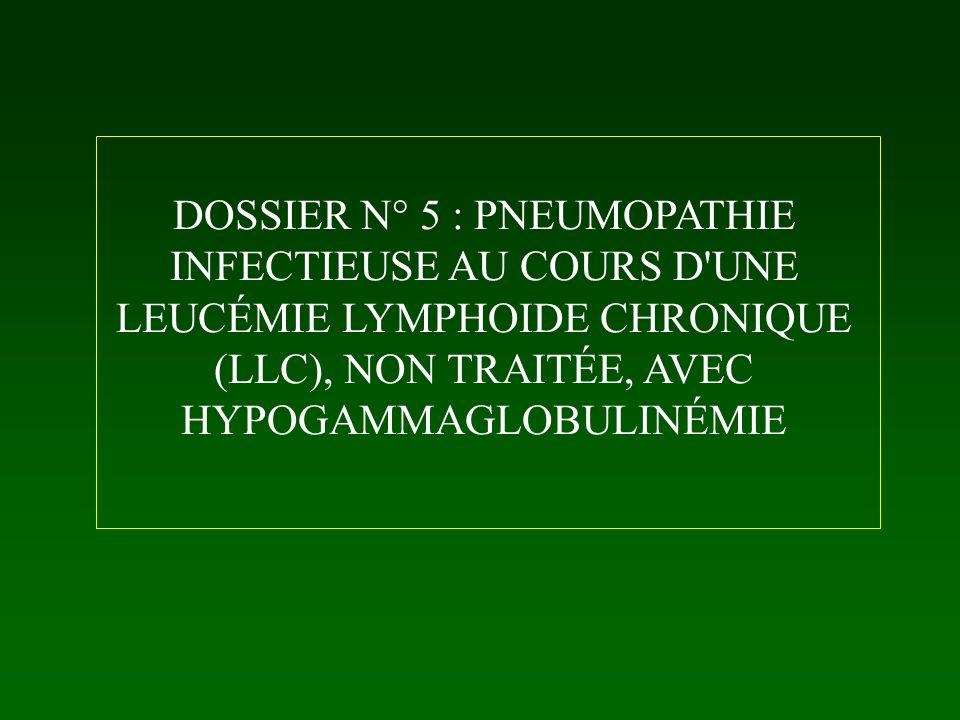 DOSSIER N° 5 : PNEUMOPATHIE INFECTIEUSE AU COURS D UNE LEUCÉMIE LYMPHOIDE CHRONIQUE (LLC), NON TRAITÉE, AVEC HYPOGAMMAGLOBULINÉMIE
