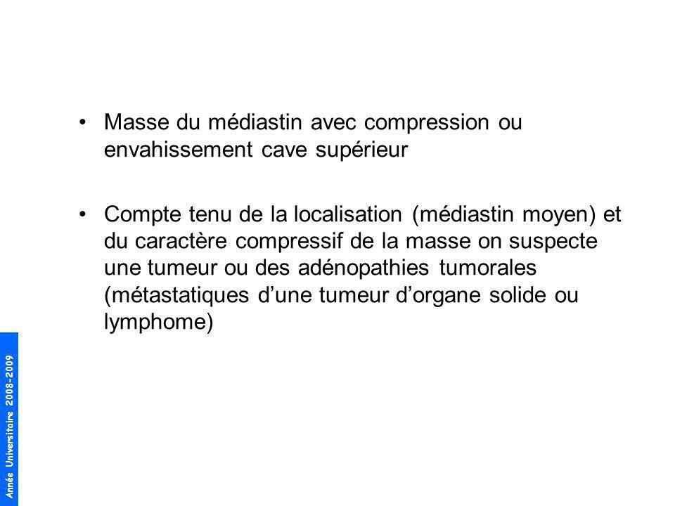 Masse du médiastin avec compression ou envahissement cave supérieur