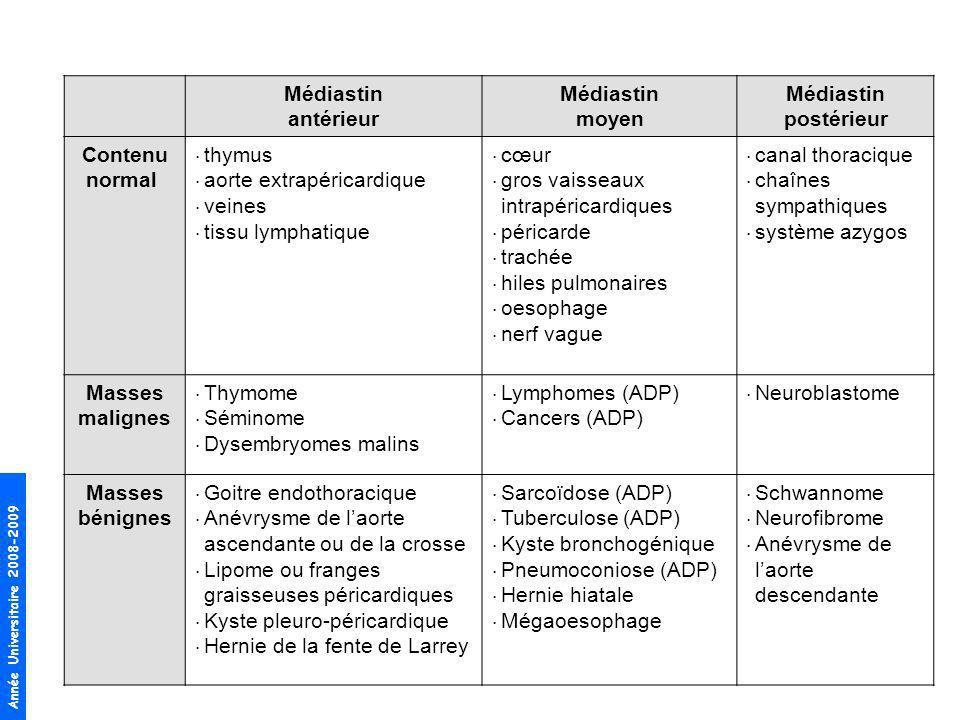 Médiastin antérieur. moyen. postérieur. Contenu normal thymus. aorte extrapéricardique. veines.