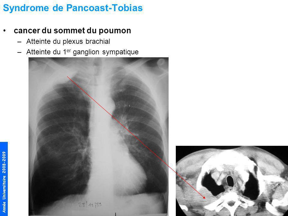 Syndrome de Pancoast-Tobias