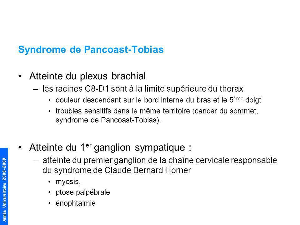 Syndrome de Pancoast-Tobias Atteinte du plexus brachial