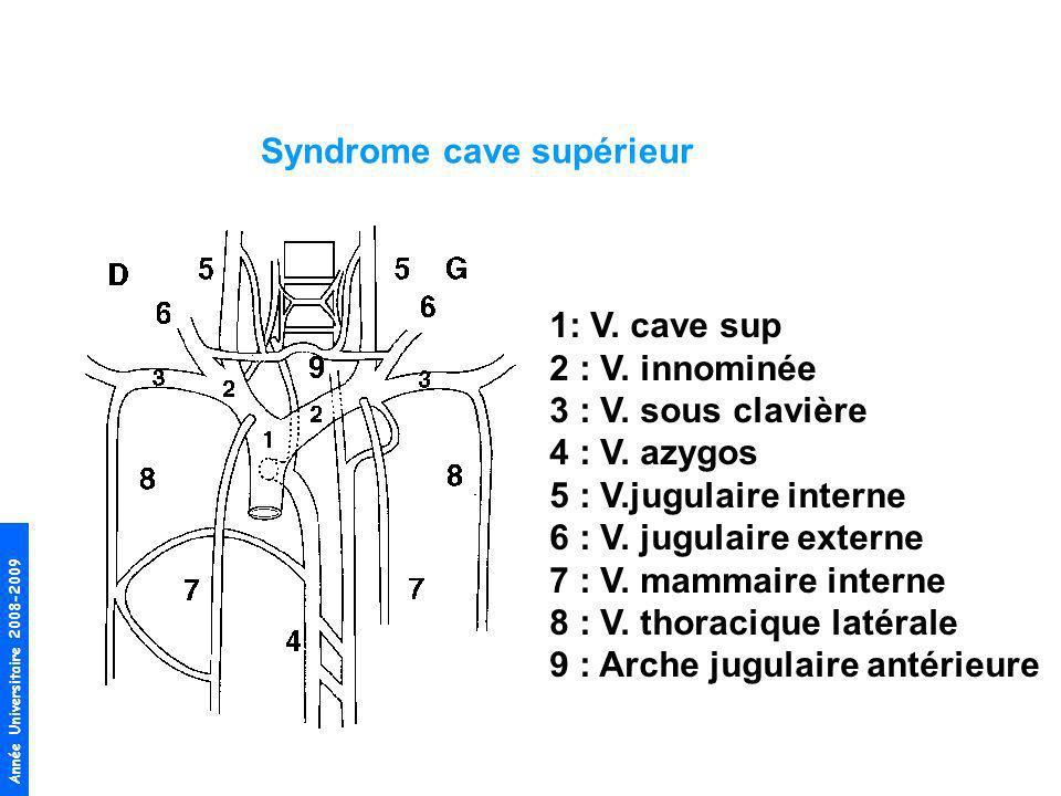 Syndrome cave supérieur