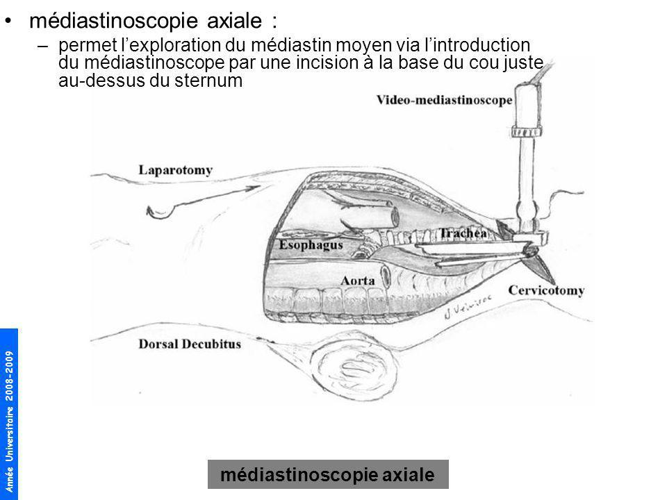médiastinoscopie axiale