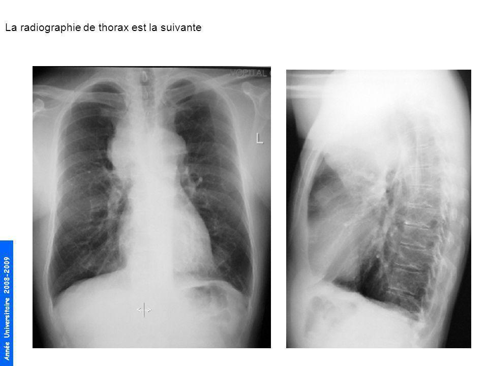 La radiographie de thorax est la suivante