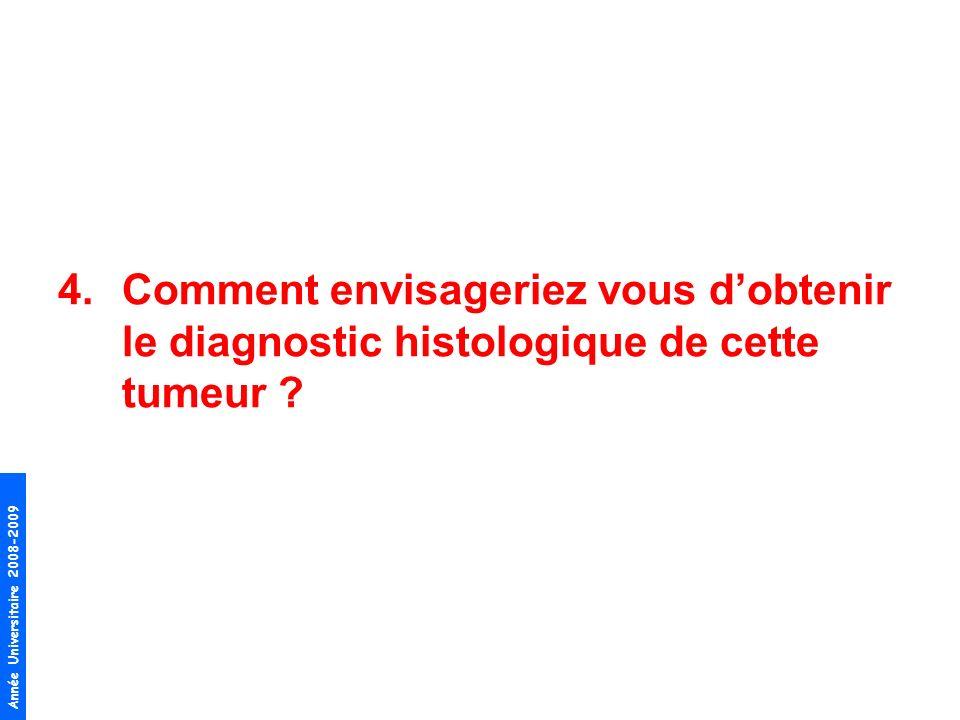 Comment envisageriez vous d'obtenir le diagnostic histologique de cette tumeur