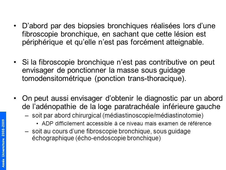 D'abord par des biopsies bronchiques réalisées lors d'une fibroscopie bronchique, en sachant que cette lésion est périphérique et qu'elle n'est pas forcément atteignable.