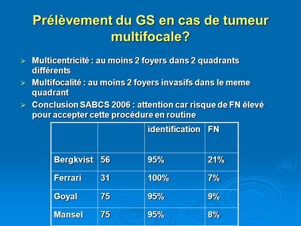 Prélèvement du GS en cas de tumeur multifocale