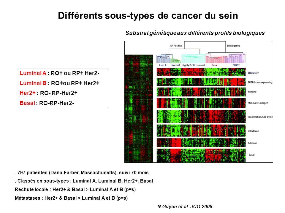 Différents sous-types de cancer du sein