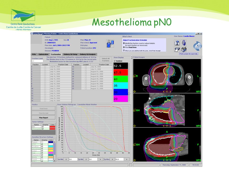 Mesothelioma pN0