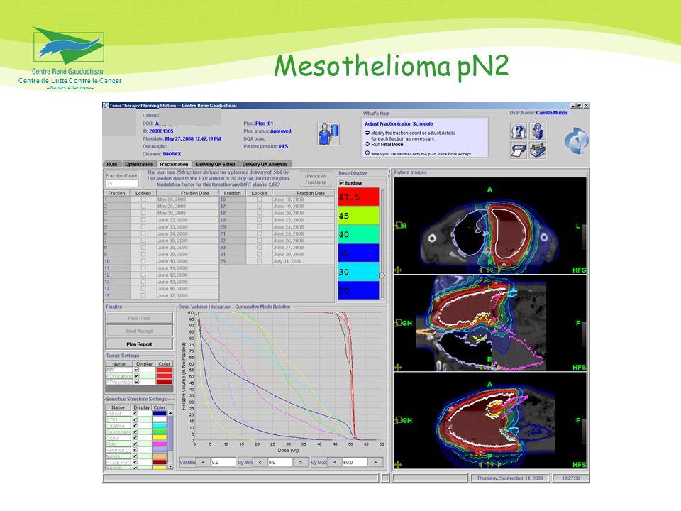 Mesothelioma pN2