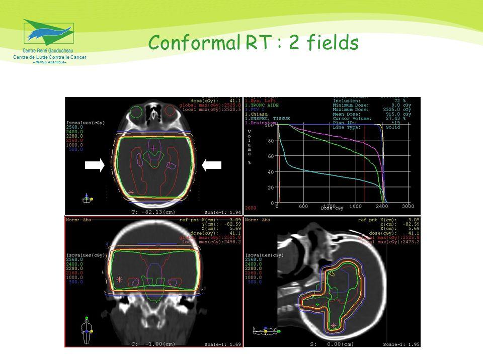 Conformal RT : 2 fields Exemple de dosi par 2 fx : un tunnel