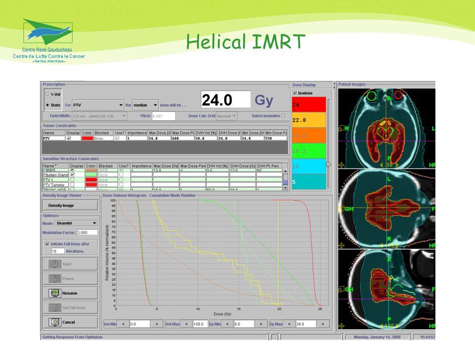 Helical IMRT Bonne couverture homogène du volume cible