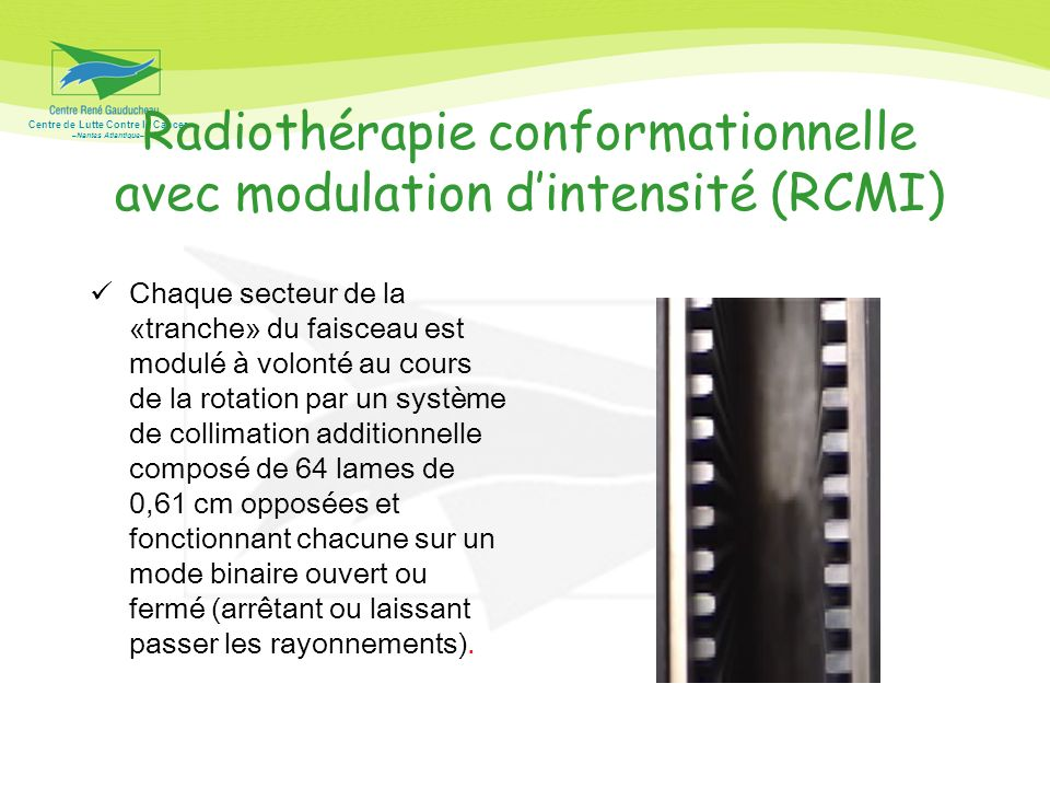Radiothérapie conformationnelle avec modulation d'intensité (RCMI)