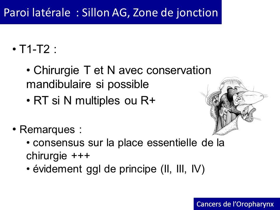Paroi latérale : Sillon AG, Zone de jonction