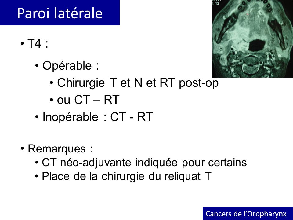 Paroi latérale T4 : Opérable : Chirurgie T et N et RT post-op