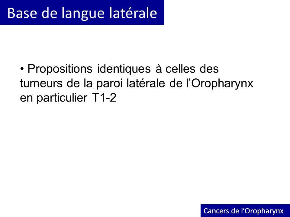 Base de langue latérale