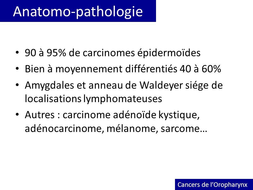 Anatomo-pathologie 90 à 95% de carcinomes épidermoïdes