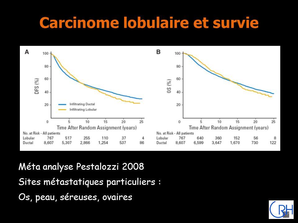 Carcinome lobulaire et survie
