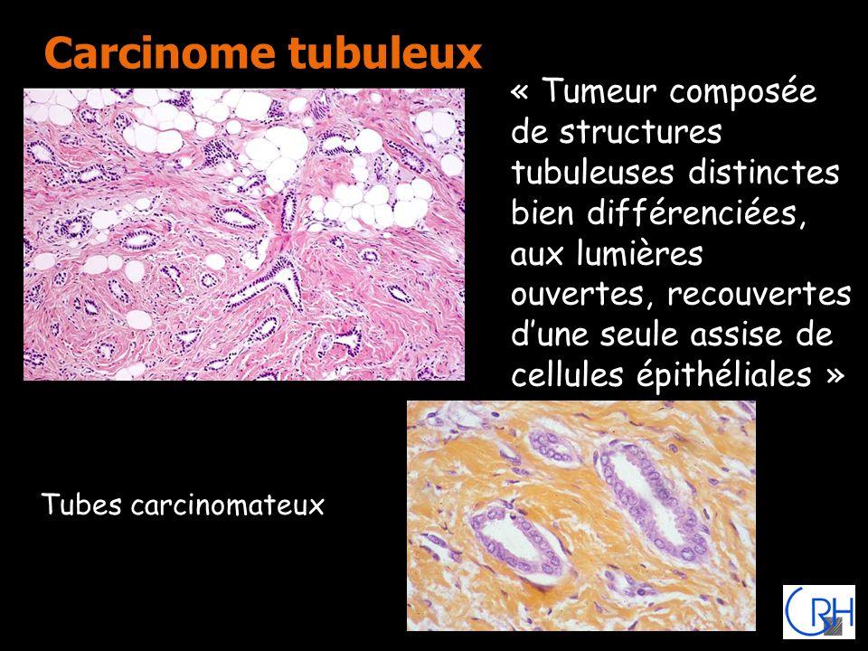 Carcinome tubuleux