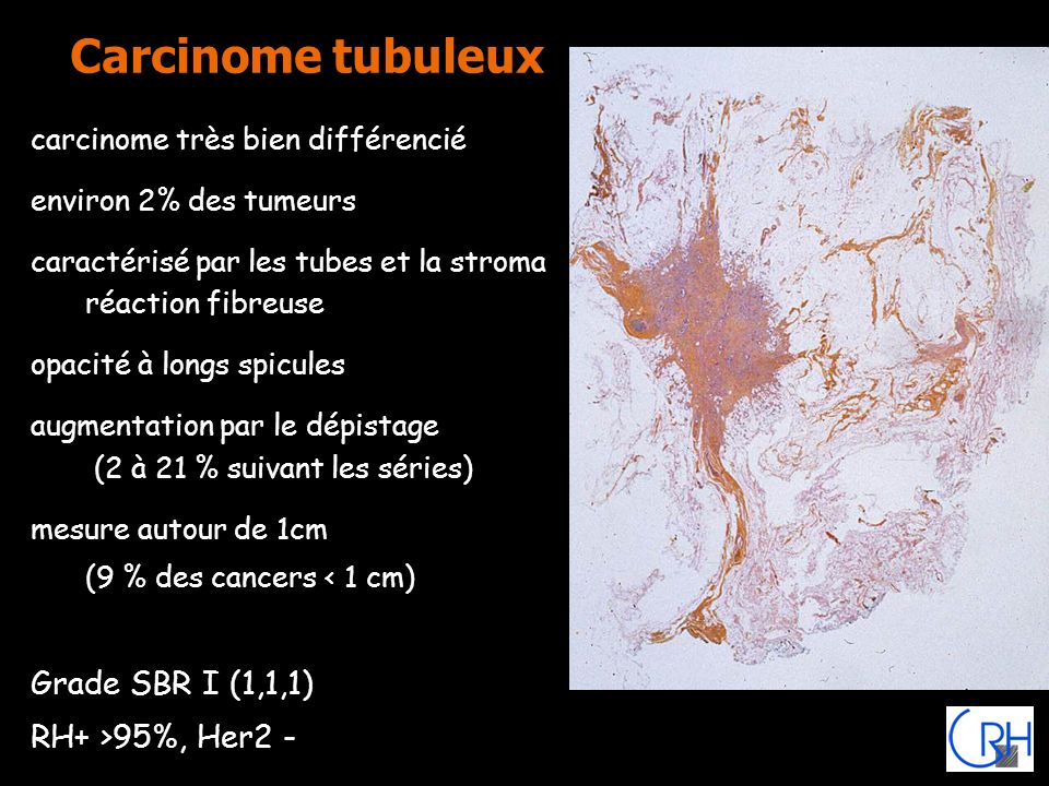 Carcinome tubuleux Grade SBR I (1,1,1) RH+ >95%, Her2 -