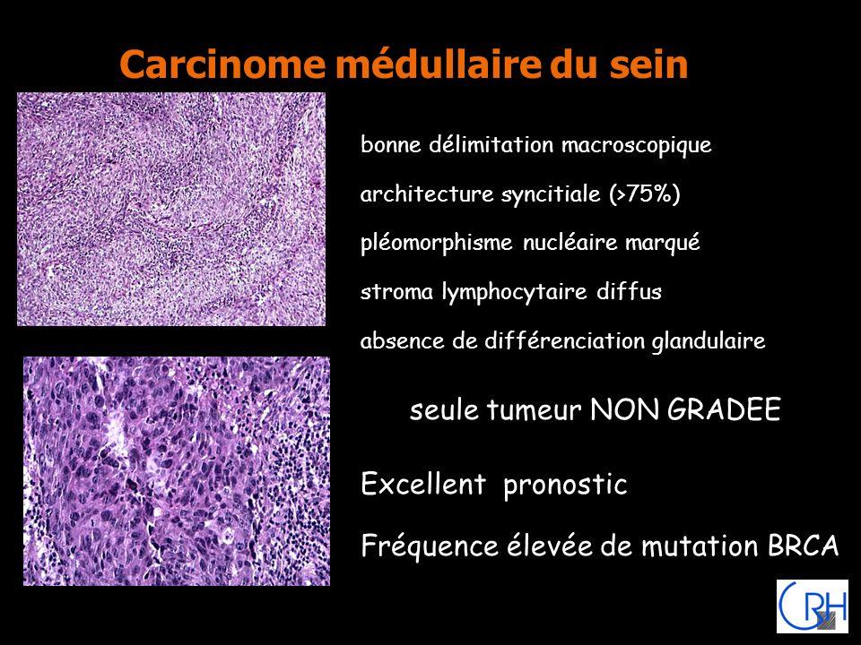 Carcinome médullaire du sein