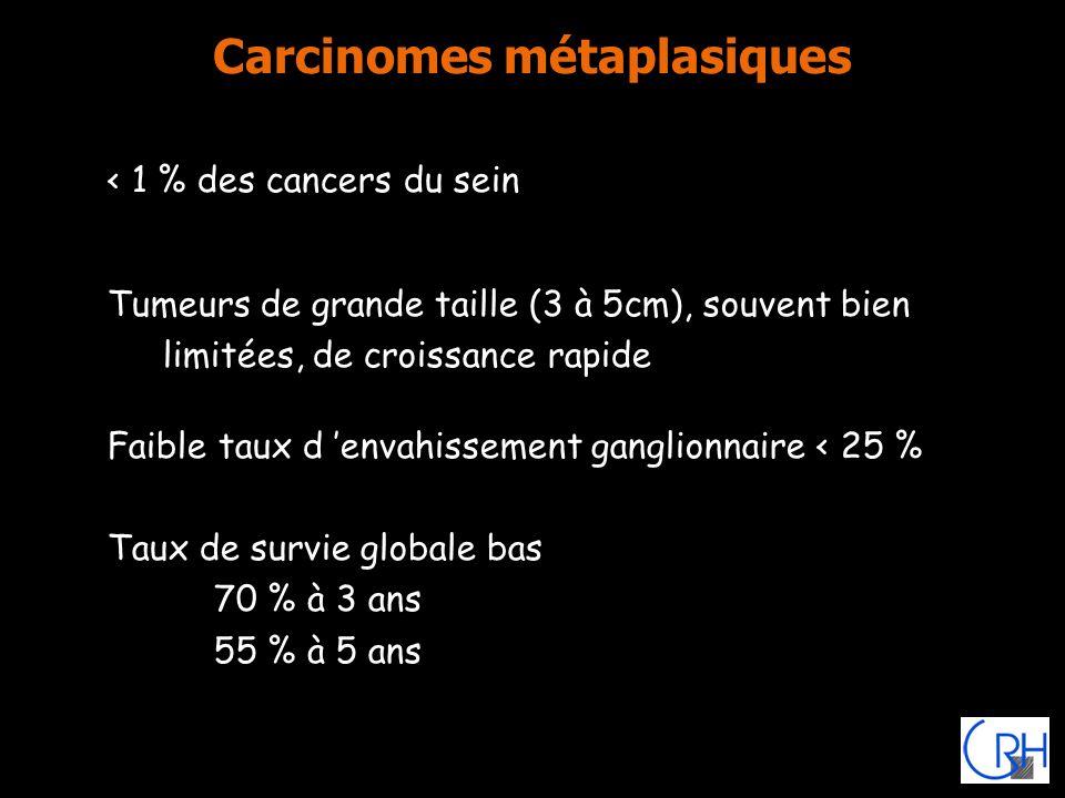 Carcinomes métaplasiques