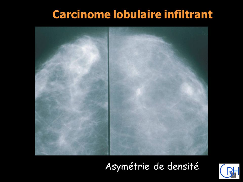 Carcinome lobulaire infiltrant