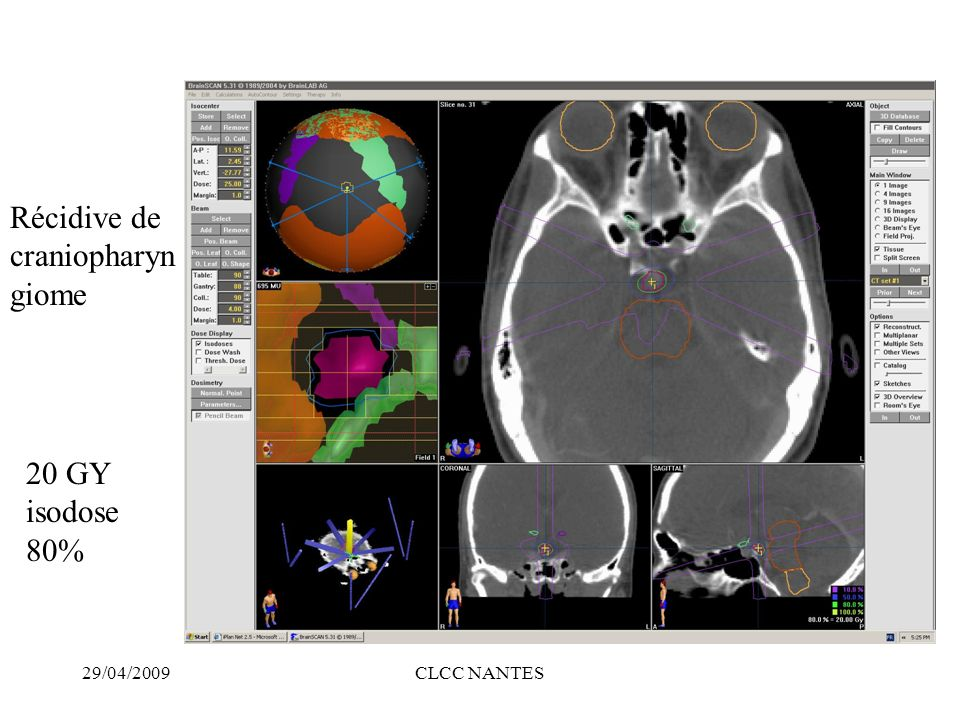 Récidive de craniopharyngiome