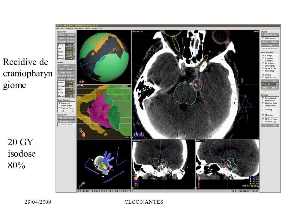 Recidive de craniopharyngiome