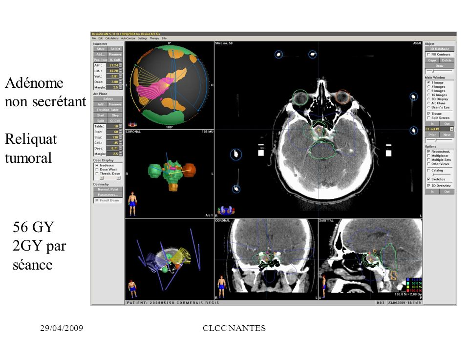 Adénome non secrétant Reliquat tumoral 56 GY 2GY par séance 29/04/2009