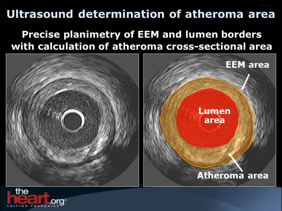 Ultrasound determination of atheroma area