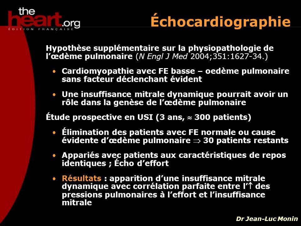 Échocardiographie Hypothèse supplémentaire sur la physiopathologie de l'œdème pulmonaire (N Engl J Med 2004;351:1627-34.)