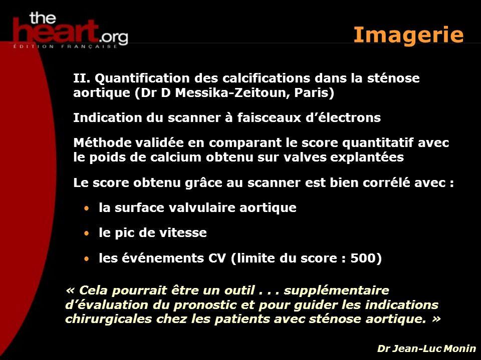 Imagerie II. Quantification des calcifications dans la sténose aortique (Dr D Messika-Zeitoun, Paris)