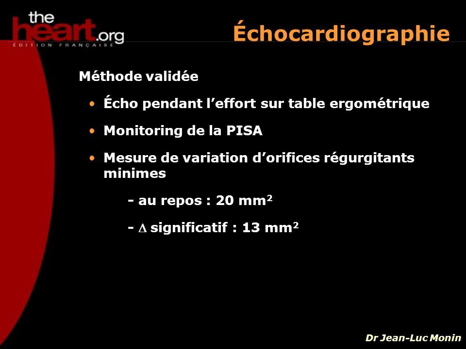 Échocardiographie Méthode validée