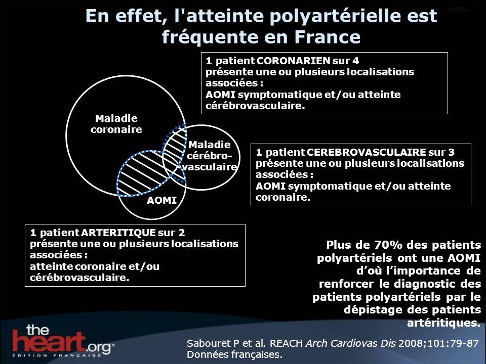 En effet, l atteinte polyartérielle est fréquente en France