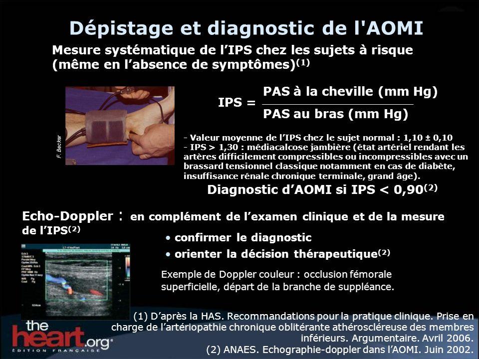 Dépistage et diagnostic de l AOMI