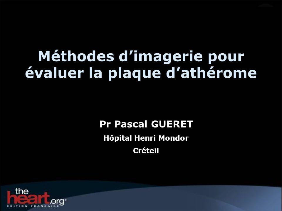 Méthodes d'imagerie pour évaluer la plaque d'athérome