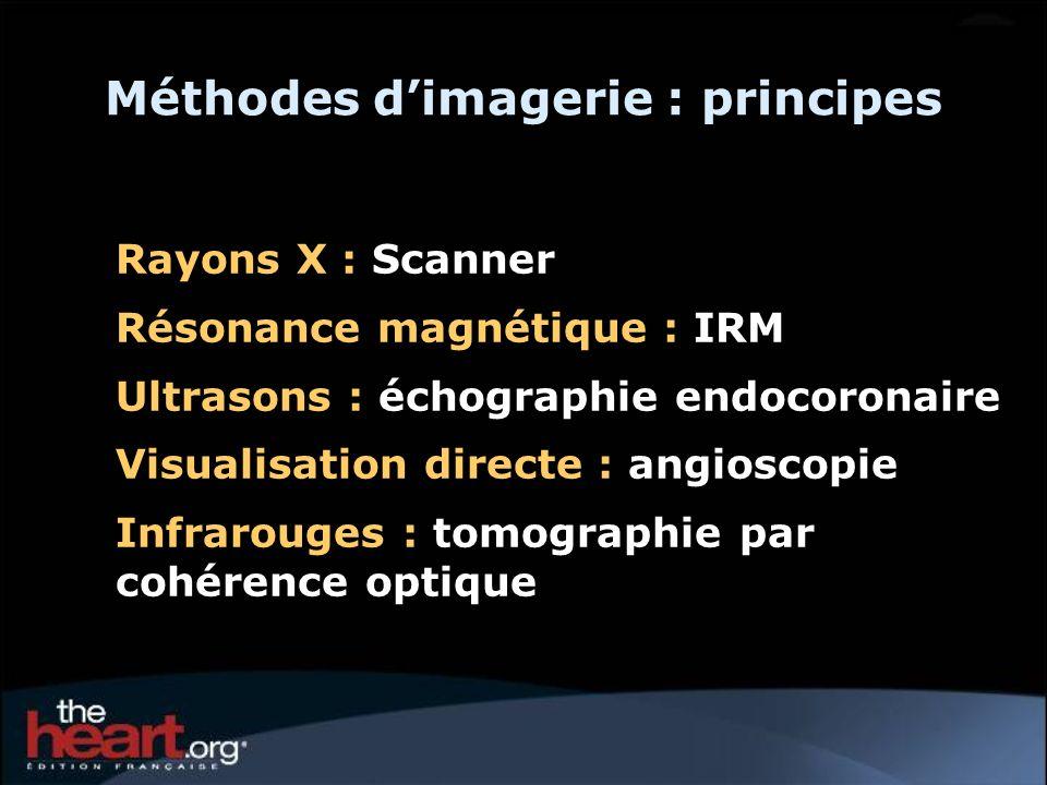 Méthodes d'imagerie : principes