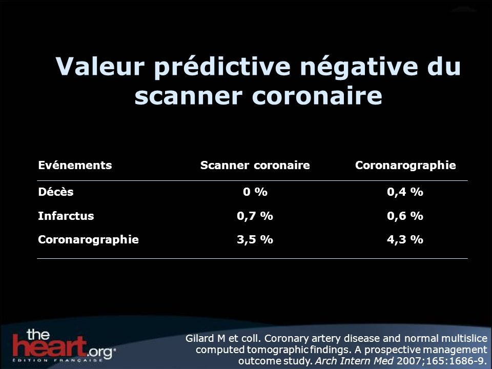 Valeur prédictive négative du scanner coronaire