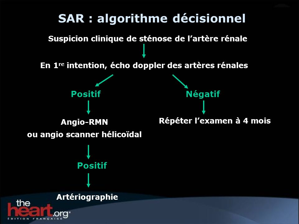 SAR : algorithme décisionnel