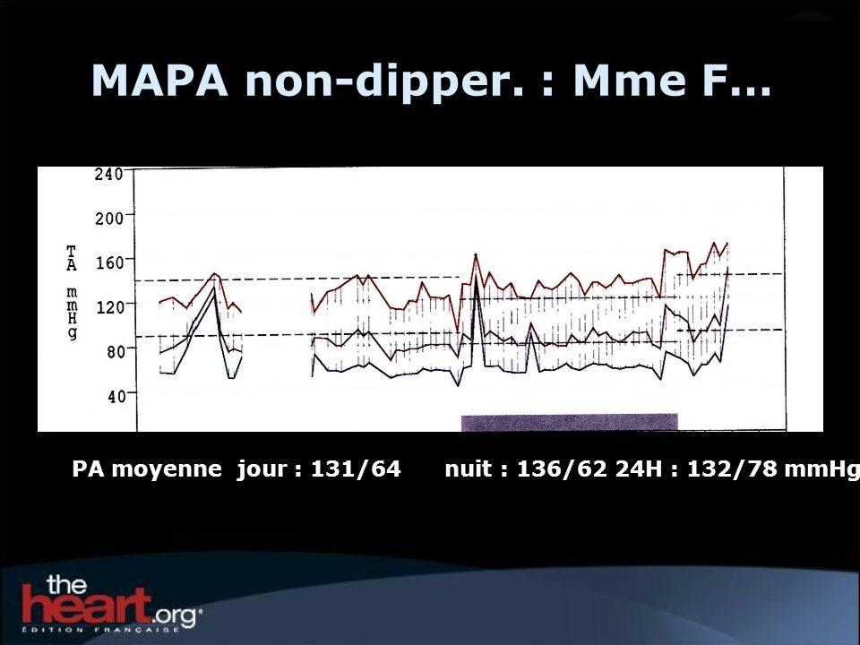 MAPA non-dipper. : Mme F…